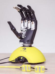 reportage protheses Bionische hand 3 – Sanne