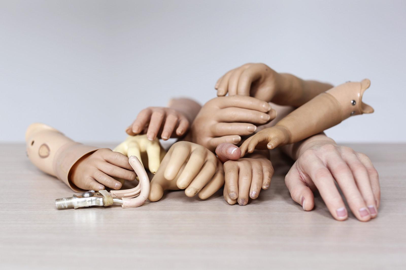 reportage protheses Hoopje handen – Sanne