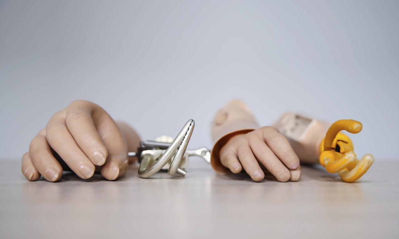 reportage protheses Handen en haken – Sanne
